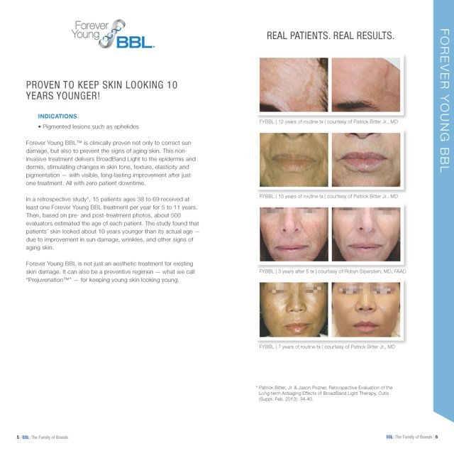 2600-029-03 Rev J BBL Photofacial before and after 2 .jpg